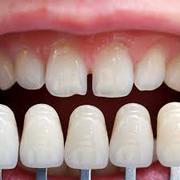 David Rozek Denture Clinic